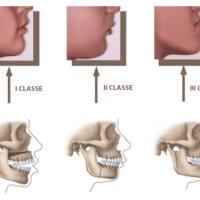 Quando usare l'ortodonzia