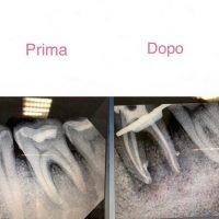 Perchè un dente devitalizzato fa male?
